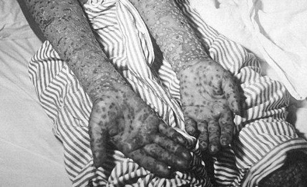 Top 10: las peores pandemias y epidemias a lo largo de la historia