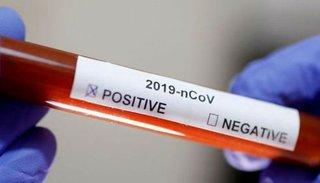 Coronavirus: profesionales de la salud evaluaron la situación epidemiológica de la Provincia