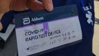El Gobierno presentó nuevos test rápidos para detectar coronavirus