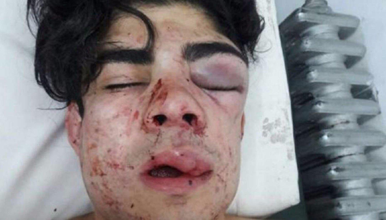 Joven sufre brutal golpiza en Argentina: Creyeron que era chileno