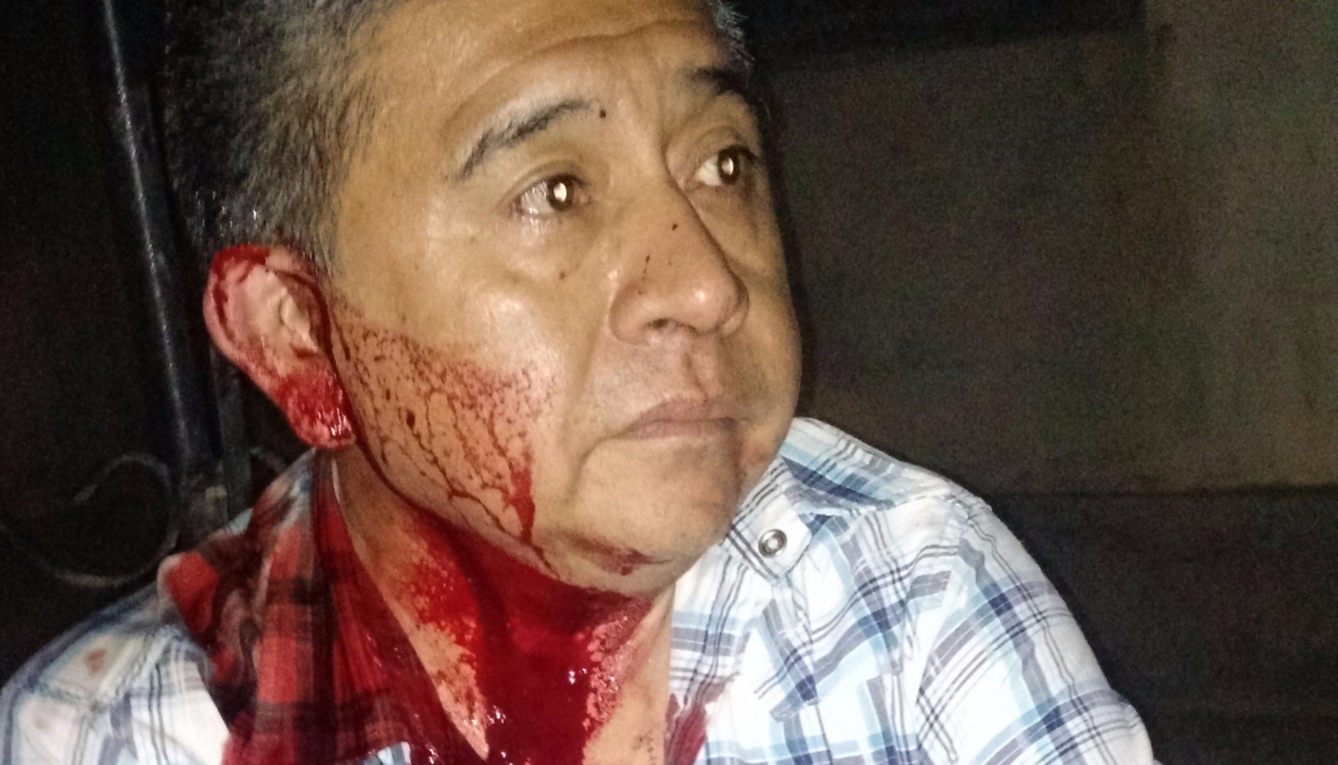 Un obrero fue atacado salvajemente  por motochorros en el acceso a Salta